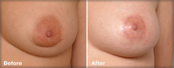Smaller areola surgery