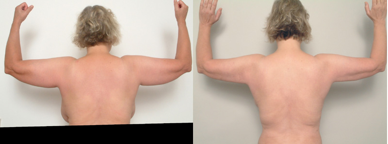 ARMS4
