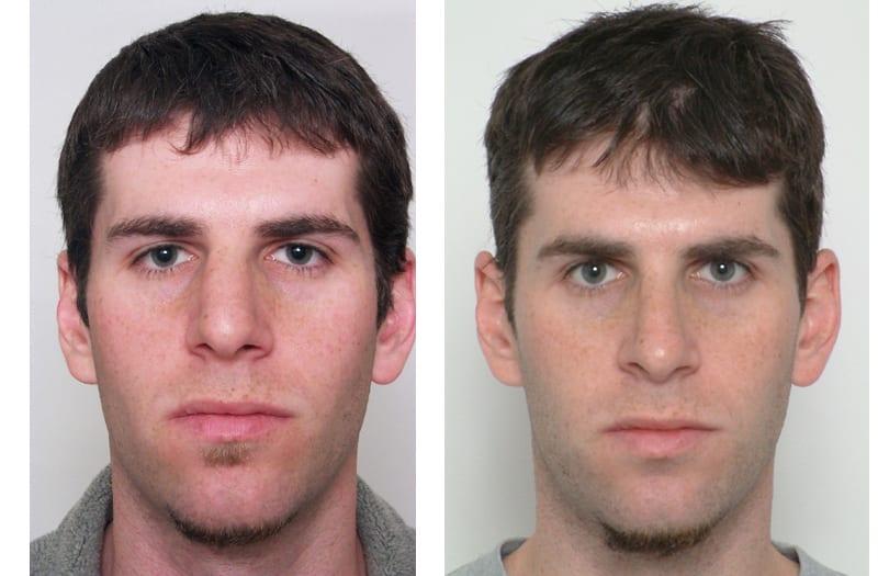 Male Nasal Revision Surgery, Male Nasal Revision Surgery