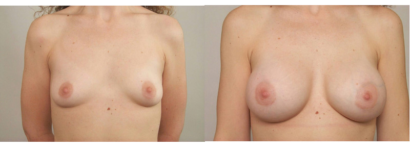 breast augmentation tubular, Breast Augmentation