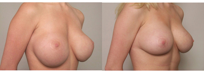 breast augmentation revision, Breast Augmentation Revision