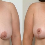 , The Surgical Breast Lift