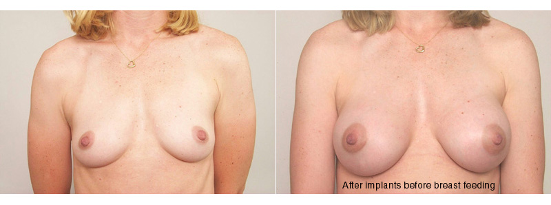 , Breast Feeding & Implants