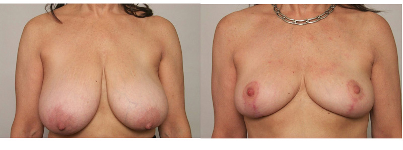 , Breast Reduction – Surgical