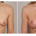 breast asymmetry, Breast Asymmetry