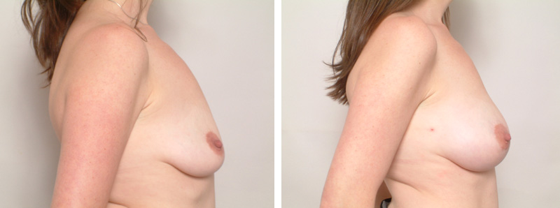 Breast-KR2