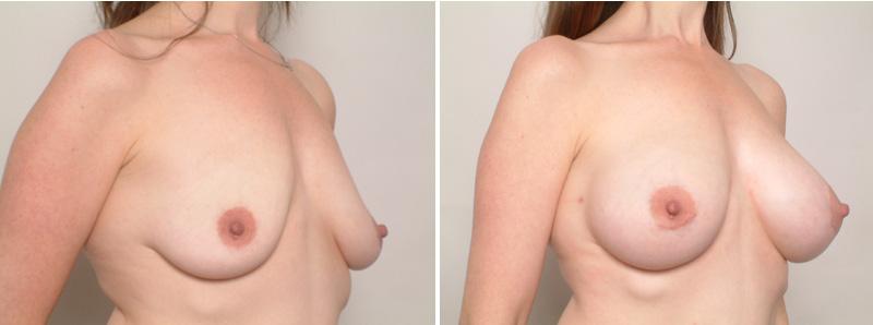 Breast-KR3