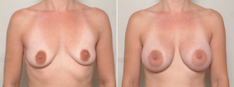 Breast-SR1