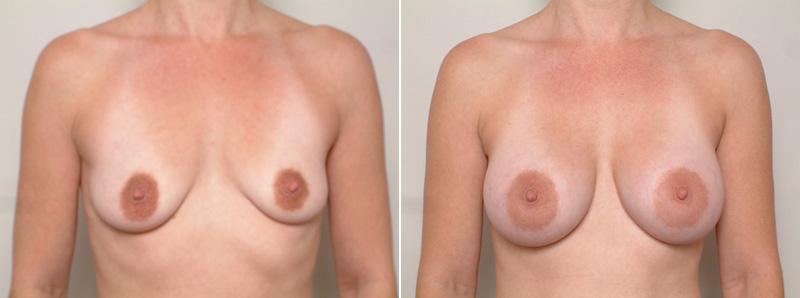 Breast-SR1