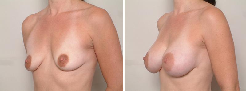 Breast-SR3