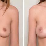 Breast-SS1