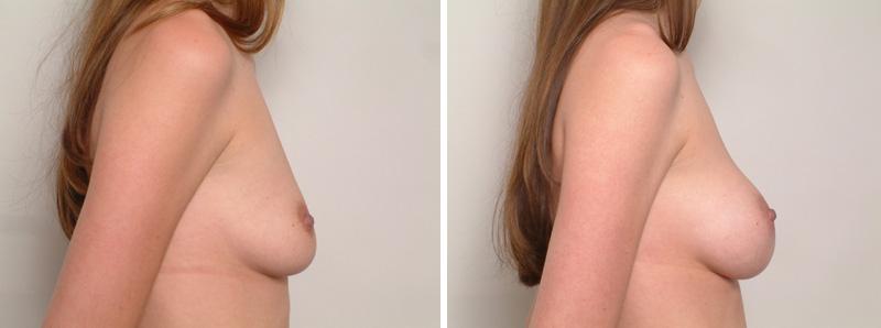 Breast-SS2