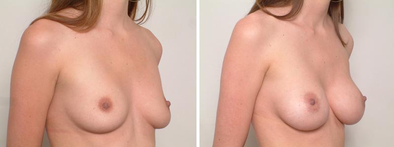 Breast-SS3