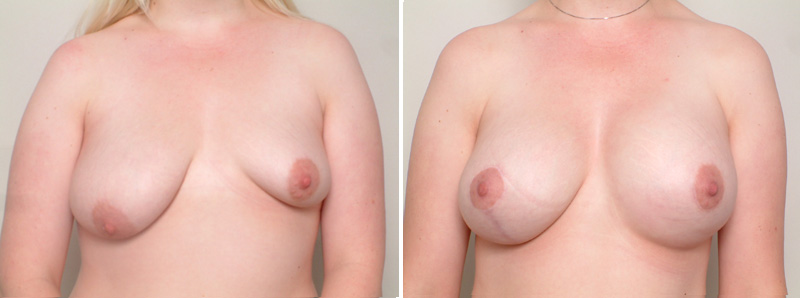 Breast_Assymetry-ST1