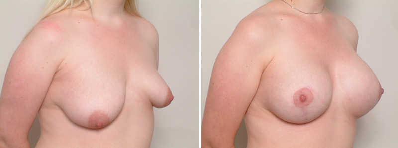 Breast_Assymetry-ST2