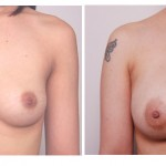 Breast_Aug-10_years_later-JA3
