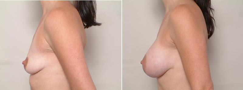 Breast_SR2