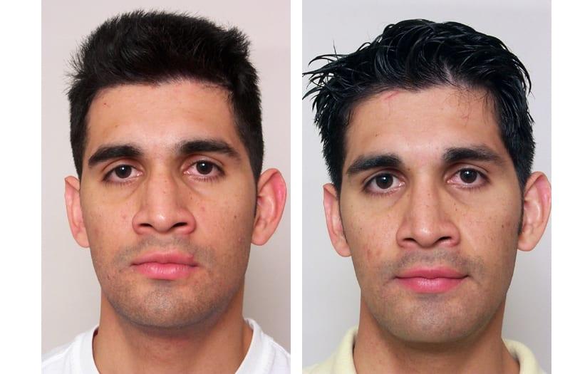 nasal surgery, Nasal Surgery