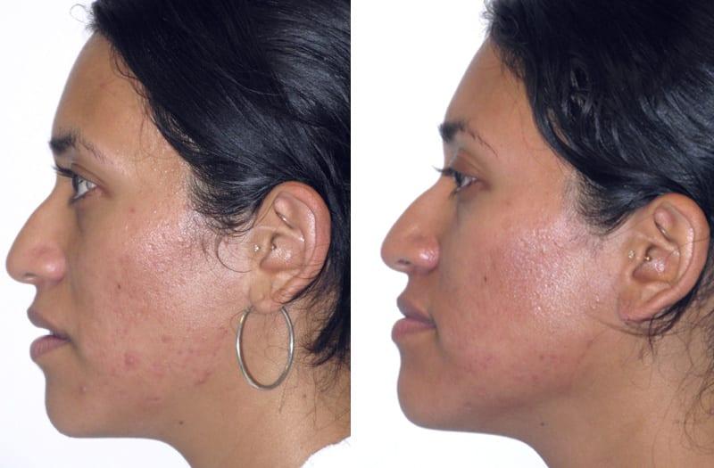 , Skin Textural Irregularities