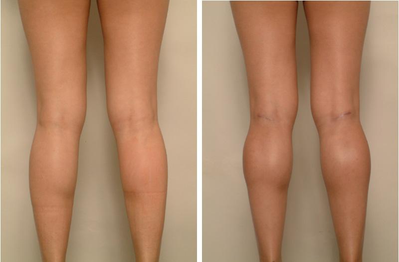 calf enlargement, Calf Enlargement