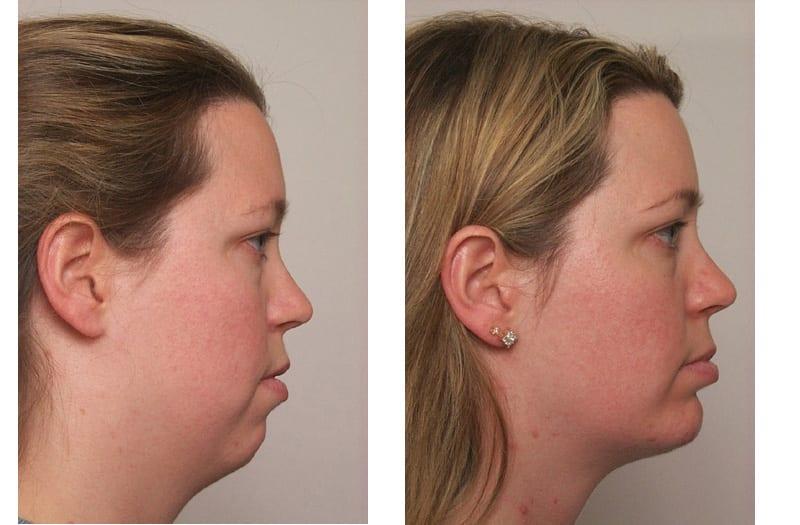 chin enhancement, Chin Enhancement