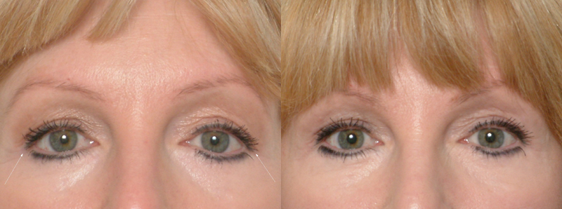 lateral canthoplasty, Canthoplasty