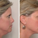 liposuction san francisco, Neck & Facial Liposuction