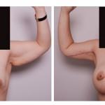 E_Martinez_Breast_Arm
