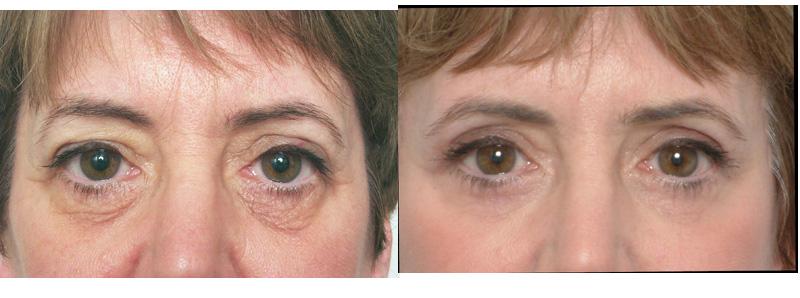eyelid surgery, Eyelid Surgery