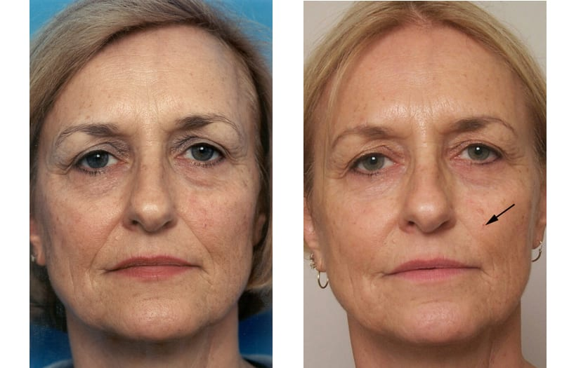 , Facial Fillers & Injectables