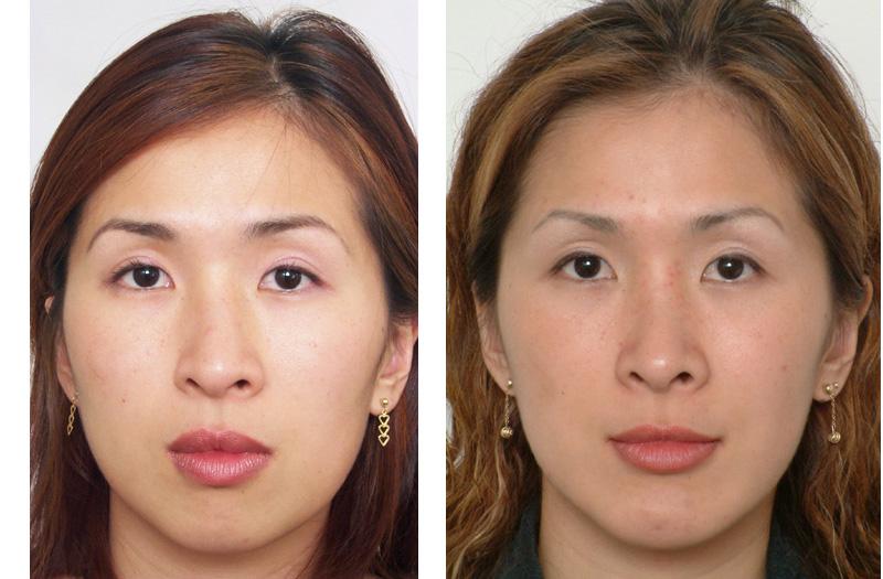 FacialBone1