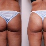 Fat_Graft_Buttocks-MG2