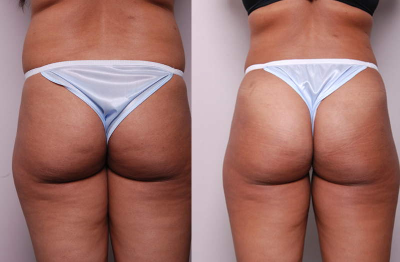 Fat_Graft_Buttocks-MG2