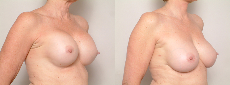 capsular contracture, Capsular Contracture of the Breast