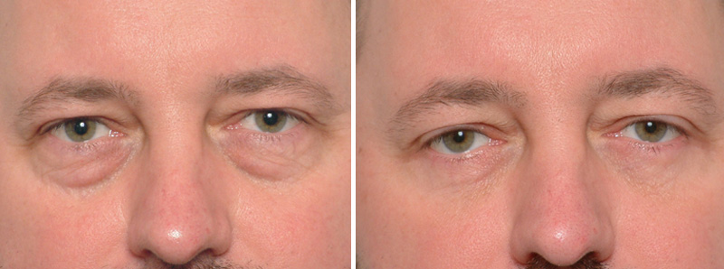 , Male Eye Lid Surgery