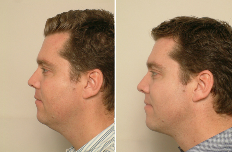 male liposuction, Male Liposuction Face & Neck