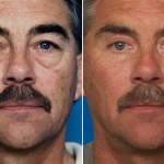 , Male Eye Lid Surgery