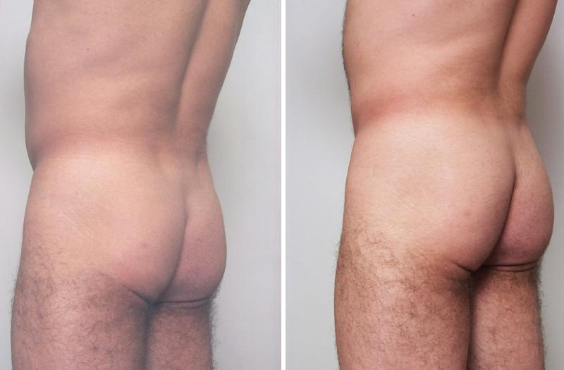 , Fat Grafting Buttocks