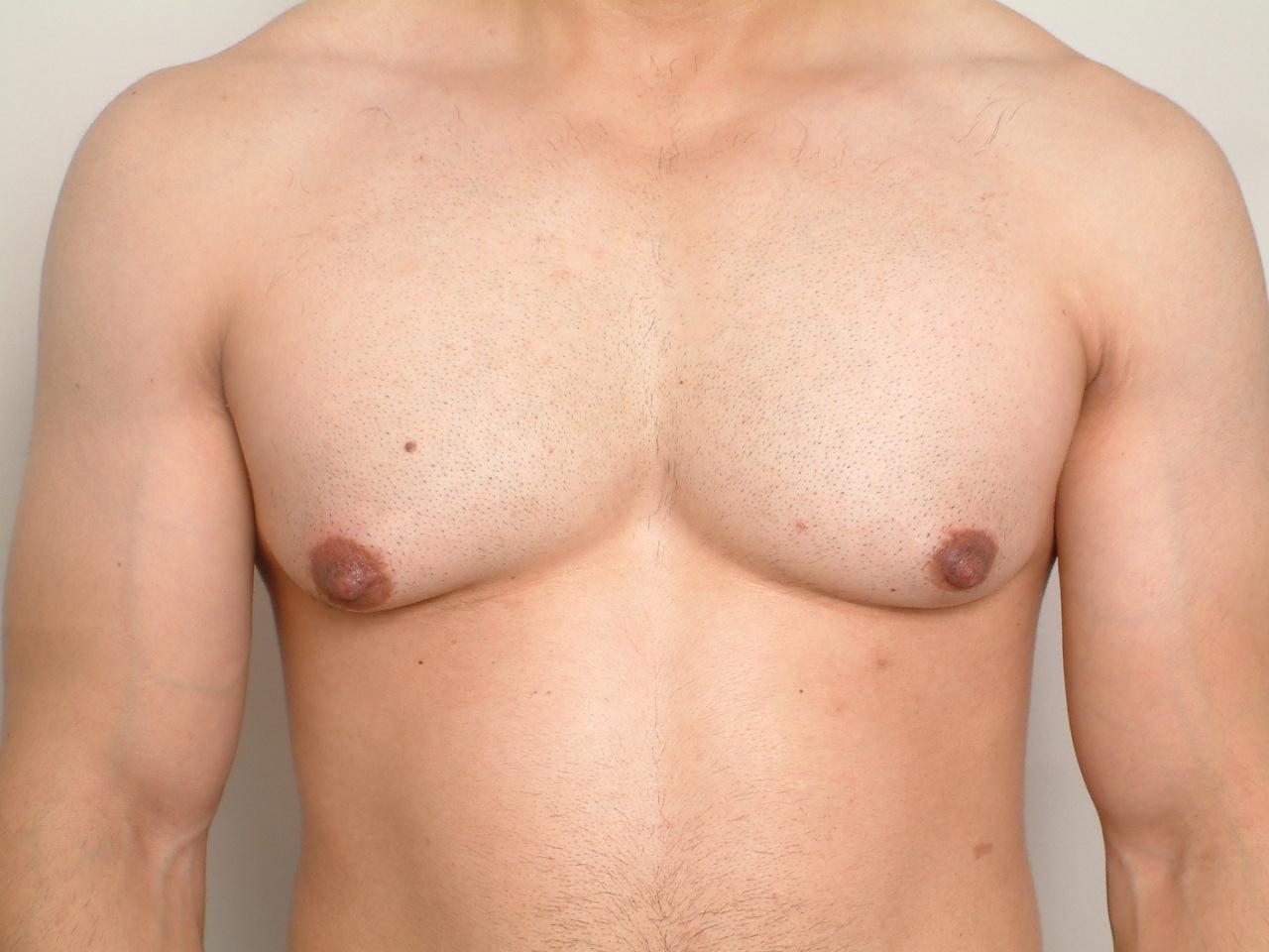 male gynecomastia, Gynecomastia