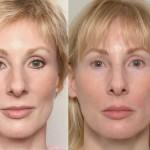 lip enhancement options, Lip Enhancement