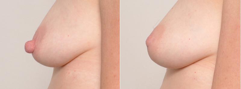 nipple reduction, Nipple Reduction