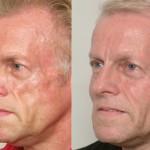 , Facial Wasting