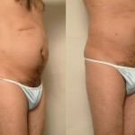 Liposuction for Men, Male Liposuction of the Body
