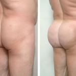 RJ-fg-butt2