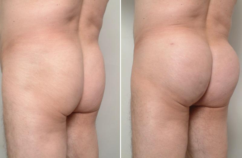 RJ-fg_butt1