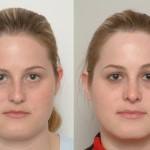 rhinoplasty plastic surgery, Nose Beautification – Rhinoplasty