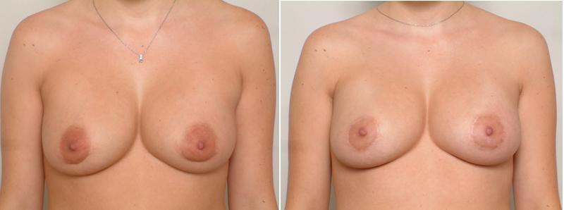 areola surgery, Areola Surgery