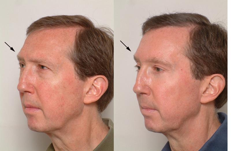 facial surgery, Facial Bone Reduction