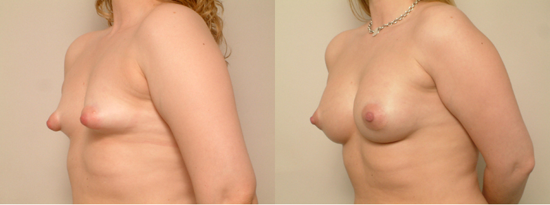 breast correction, San Francisco Tubular Breast Correction