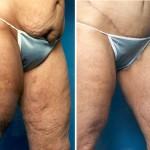 Thigh1